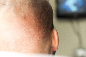 FUE Haartransplantatie Arjan Benning - detailfoto
