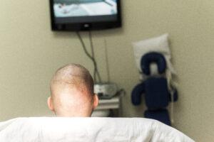 FUE Haartransplantatie Arjan Benning - achterkant van het hoofd