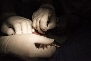 Haartransplantatie FUE Arjan Benning - uitname haartjes donorgebied
