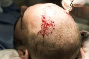 Haartransplantatie fue Arjan Benning - inzetten haartjes