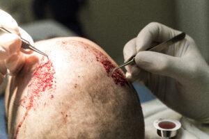 Haartransplantatie Arjan Benning - inzetten haren close up bovenaanzicht