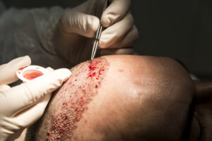 Haartransplantatie Arjan Benning - inzetten haren close up