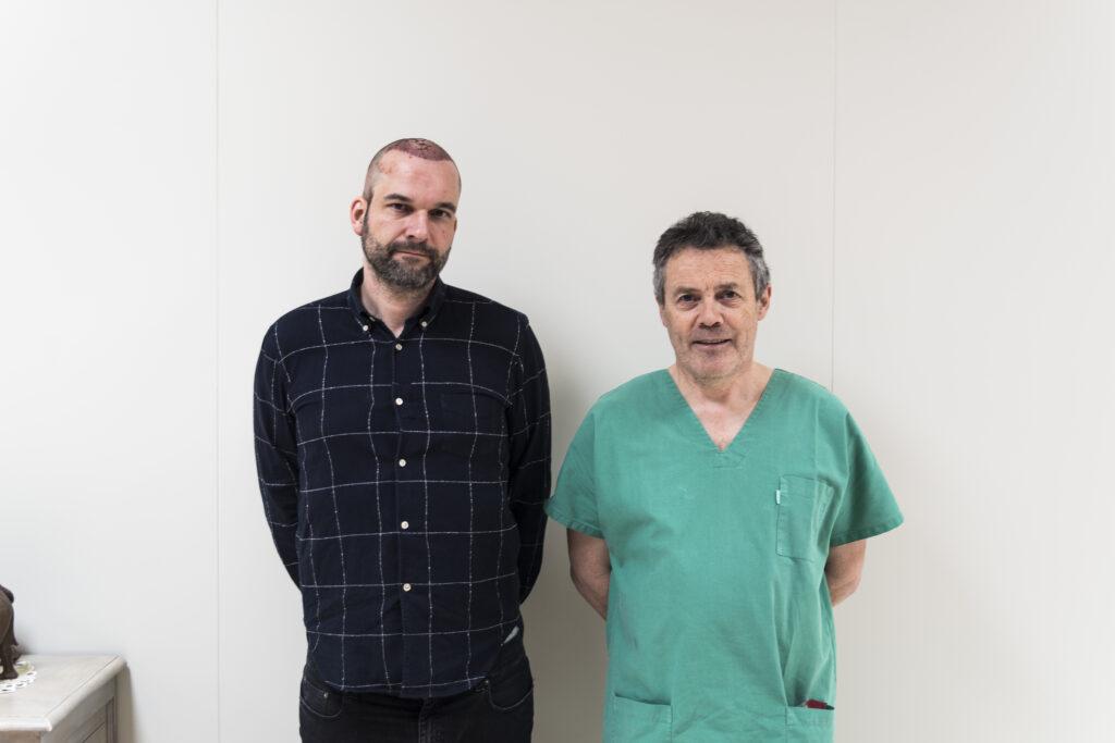 Arts en cliënt haartransplantatie na