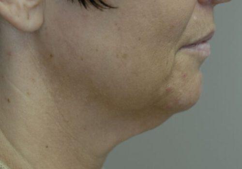 Liposuctie onderkin voor