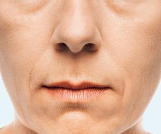 Neus-lippen plooi voor - Radiesse