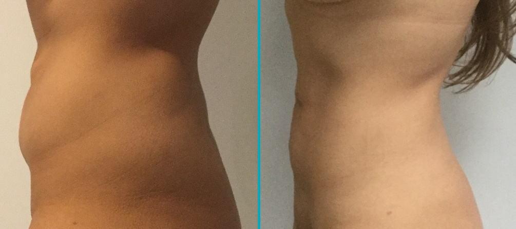 Resultaat liposuctie