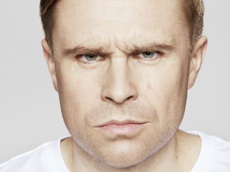 Fronsrimpel voor Botox Azzalure man