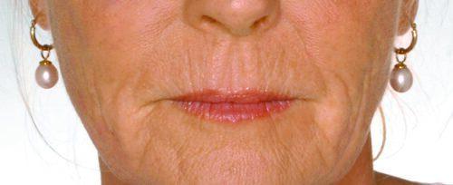 Lippen opvullen dame voor - lip fillers - injectables