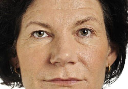 Liquid facelift na - dunne lippen
