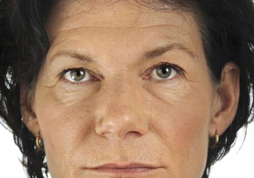 Liquid facelift voor - dunne lippen