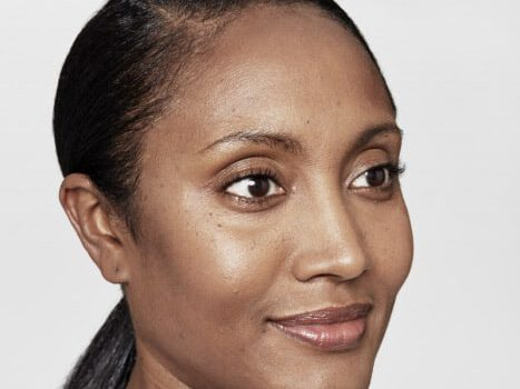 Traandal of traangoot voor fillers - injectables - Restylane Vanessa