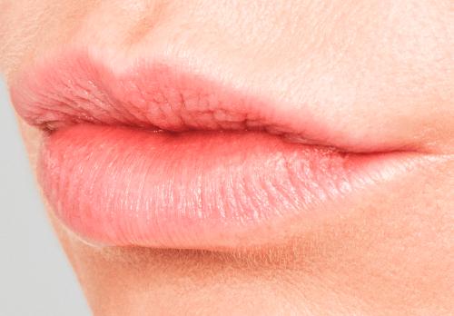 Volume in lippen met Restylane voor - lip fillers - injectables