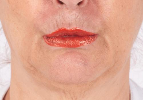 Botox kin na