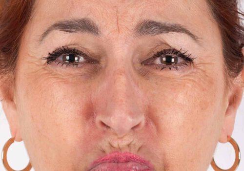 Botox kin voor