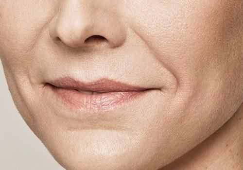 nasolabiale plooi vrouw voor